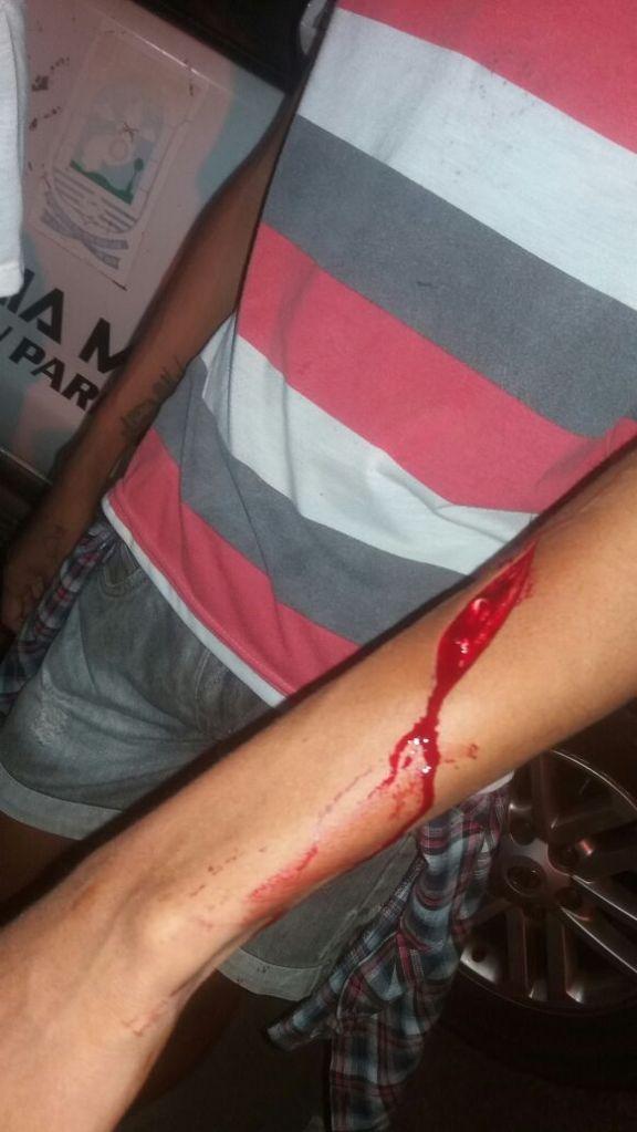 Garoto foi atingido em Parnaiba (Crédito: Reprodução)