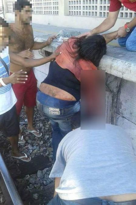 Em acidente, mulher teve parte do braço amputado