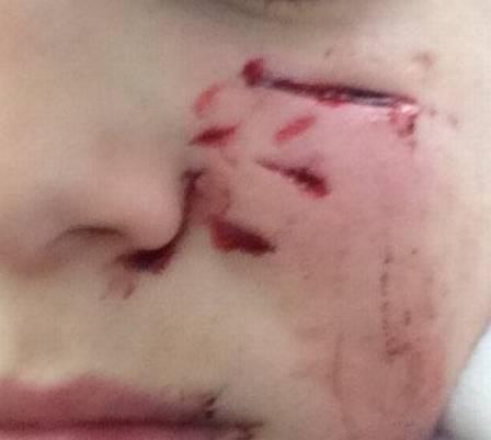 Garoto foi atacado no rosto por cachorro