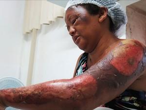 Deuzilene Antônia da Silva de 42 anos (Crédito: Reprodução)