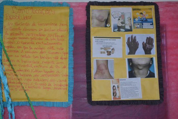 ASA realiza I Exposição Saúde na Escola - Imagem 41