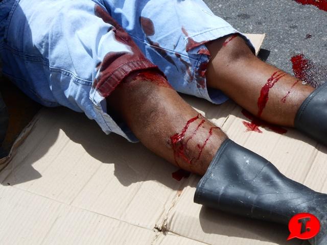 Acidente em Parnaíba deixa casal ferido (Crédito: Reprodução)