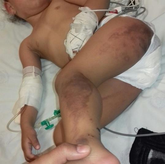 Criança com hematomas (Crédito: reprodução)