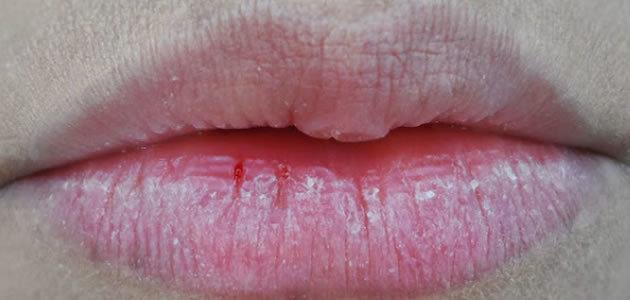 8 remédios que ajudam a curar nos lábios rachados