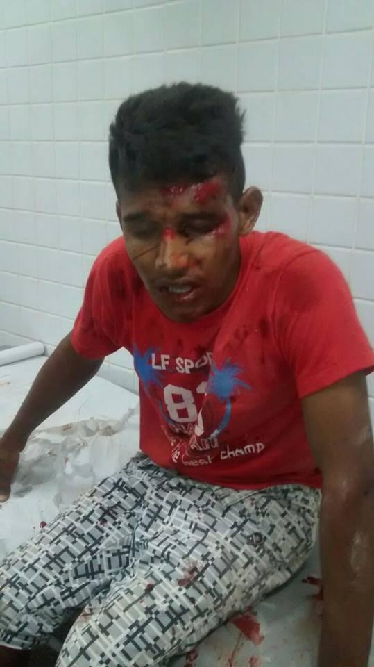 Jovem fica gravemente ferido durante perseguiçãp policial (Crédito: ReproduçÃO)