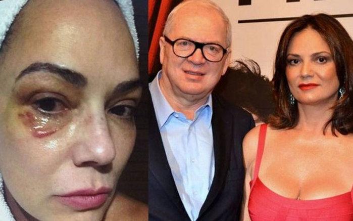 Luiza Brunet diz que foi agredido pelo marido (Crédito: Divulgação)