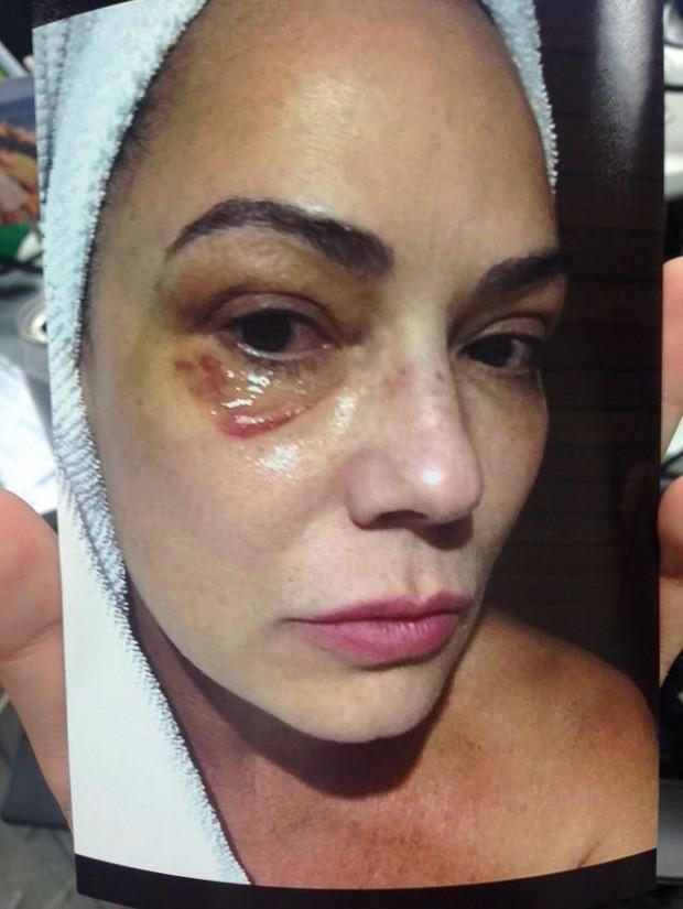 Luiza Brunet após a agressão (Crédito: Reprodução)