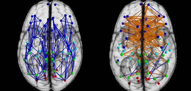 Homens e mulheres possuem cérebros do mesmo tamanho?