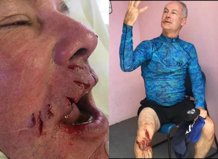 Homem é atacado por tubarão e descreve momento de terror (Crédito: Reprodução)