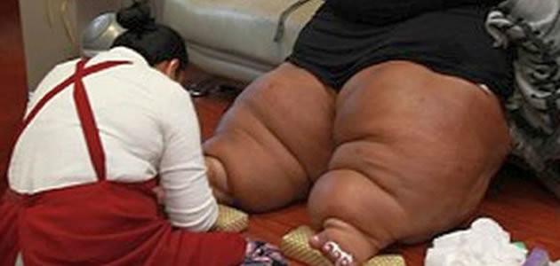 Mulher sofre com inchaço nas pernas que pode causar morte