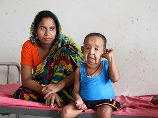 O menino nasceu com um excesso de pele (Crédito: AFP)