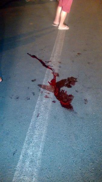 Homem ficou ferido com acidente (Crédito: Reprodução)