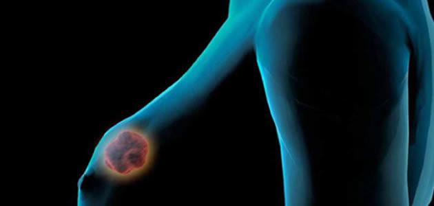 Confira 8 coisas que você precisa saber sobre o câncer