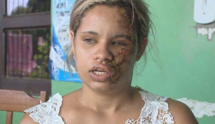 Homem agride ex-mulher e deformada rosto da vítima após discussão  (Crédito: Reprodução)