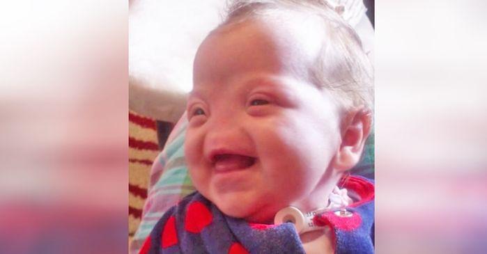 Devido condição rara, criança nasce sem nariz