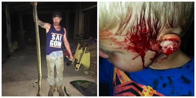 Menino foi atacado por cobra (Crédito: Divulgaçao)
