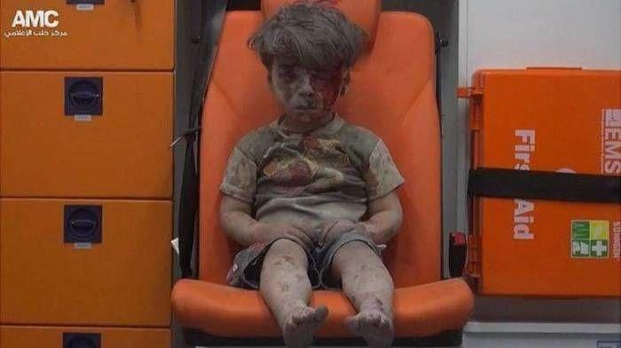 Omran Daqneesh, de cinco anos (Crédito: Reprodução)