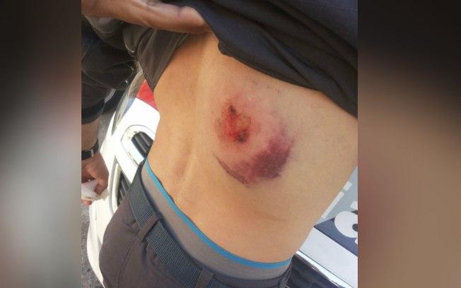 Policial foi alvejado com tiros nas costas