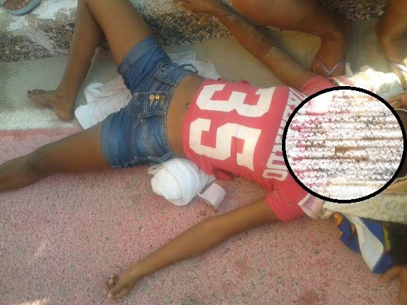 Jovem foi atropelada por ônibus (Crédito: Reprodução)