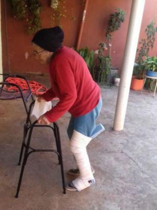 Maria Ivone teve a perna enfaixada por cima da calça e do tênis que usava nahora do atendimento