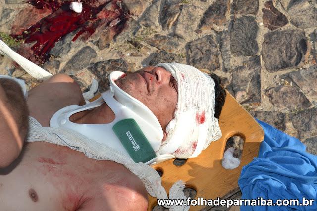 Homem caiu de motocicleta (Crédito: Reprodução )