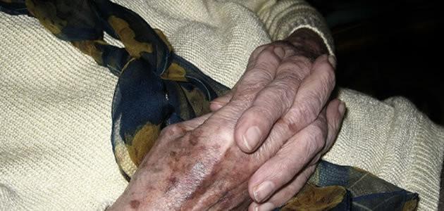 Suco de cebola pode acabar com manchas da idade