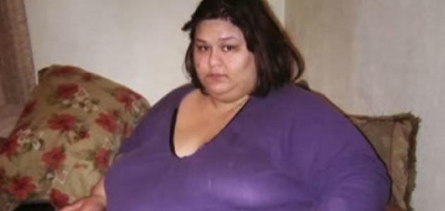 Mulher mais pesada do mundo perde 400 kg