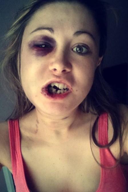 Jovem relatou agressão em rede social (Crédito: Reprodução)