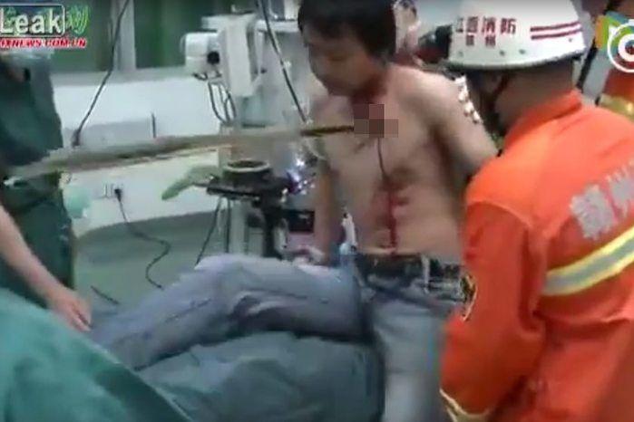 Bambu atravessou peito de homem (Crédito: Reprodução)