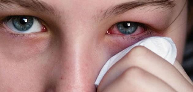O que acontece quando se dorme com lente de contato?