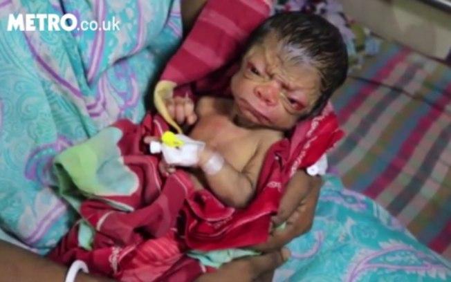 Bebê nascido na Índia foi diagnosticado com progéria