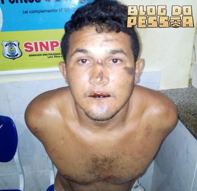 Homem é preso suspeito de tentar estuprar garota de programa (Crédito: Reprodução)