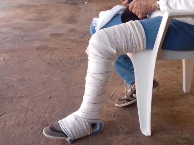 Idosa com perna enfaixada (Crédito: Reprodução)