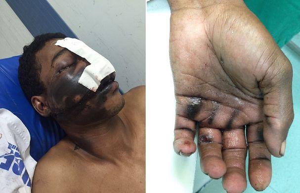 Homem fica ferido após celular explodir enquanto ela conversa (Crédito: Reprodução)