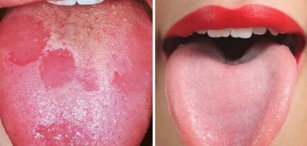 8 sinais que a língua pode dizer sobre a sua saúde