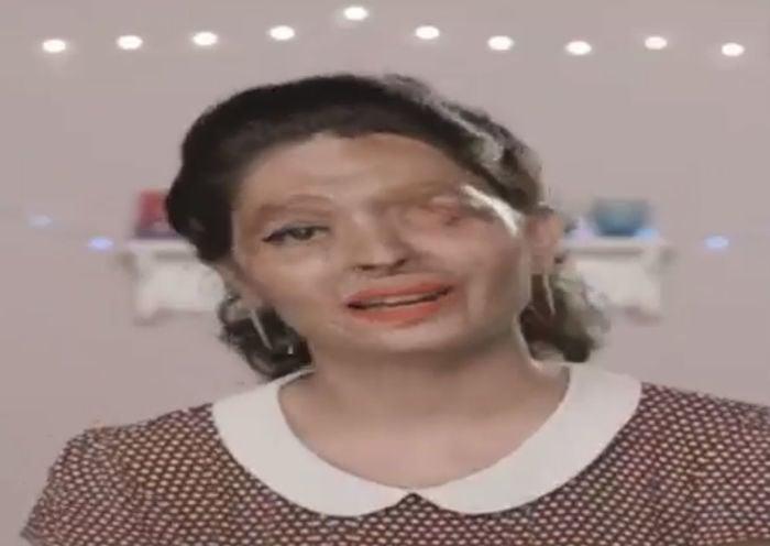 Reshma Qureshi perdeu um olho no ataque (Crédito: Reprodução)