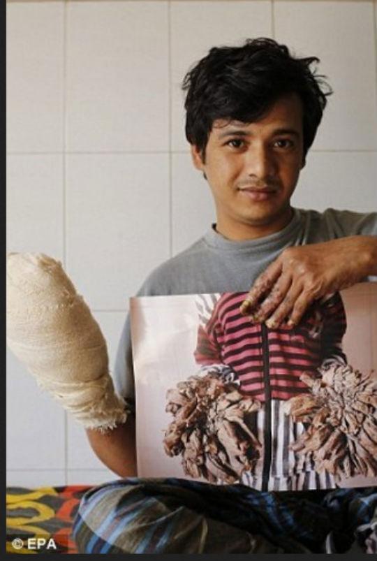 Homem-árvore passa por 16 cirurgias