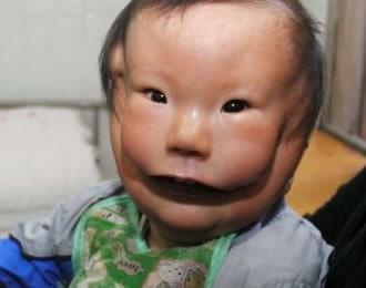 Garoto nasce com rara condição e aparenta usar uma máscara