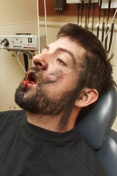 Homem perde dentes em explosão de cigarro eletrônico