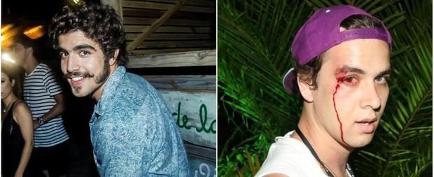 """Caio Castro fala sobre agressão à fotógrafo: """"Perdi a cabeça"""""""