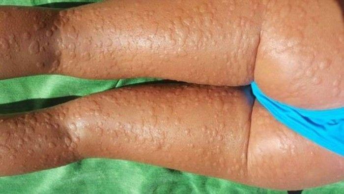 Para evitar os sintomas, Beatriz Sánchez toma quatro comprimidos de anti-histamínicos diariamente (Crédito: Reprodução)