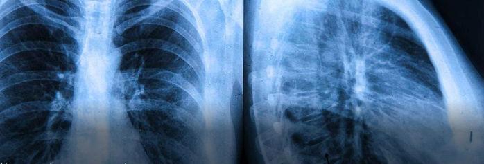 Mulher fica 6 dias sem pulmões à espera de um transplante