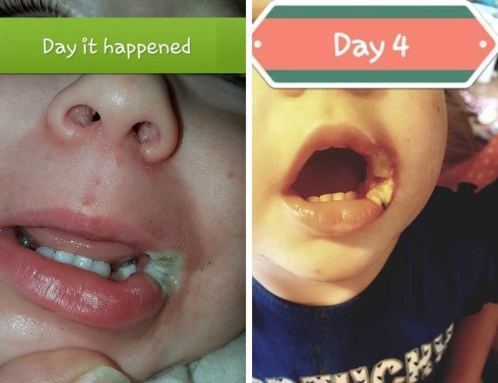 Bebê ficou com queimaduras na boca por causa de carregador (Crédito: Reprodução/Facebook)