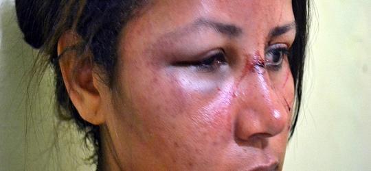 Mulher é agredida no rosto durante bebedeira em Parnaíba