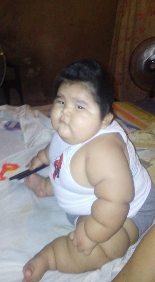 Com doença rara, bebê de 10 meses ganha peso e já passa dos 30 kg (Crédito: Reprodução)