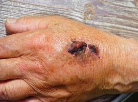 Após feridas e cortes, cola reconstrói pele em 60 segundos