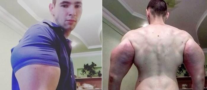 Jovem russo ganha 'supermúsculos' injetando óleo no corpo