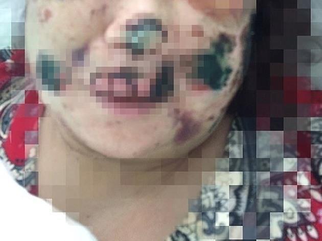 Mulher perde orelha e parte do nariz após ter encontro com canibal