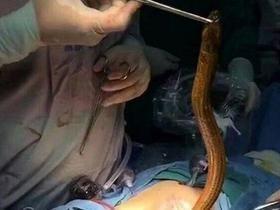 Homem faz cirurgia para retirar enguia de dentro do seu ânus