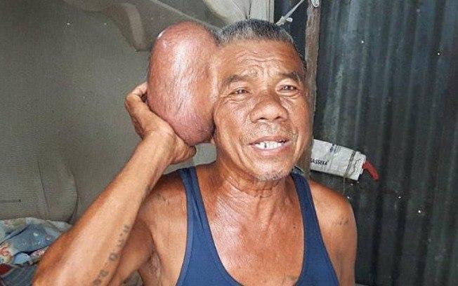 Homem passou 10 anos com tumor de 2kg na cabeça (Crédito: Twitter)